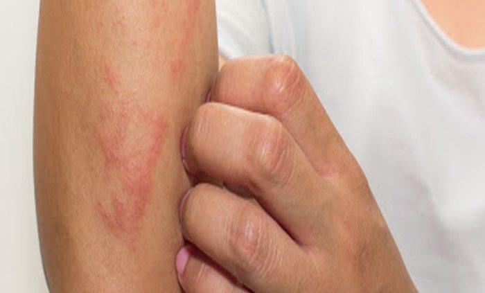 بیماری زونا چیست؟